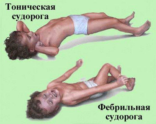 Фебрільні судом у дитини