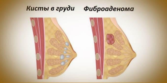 фіброаденома