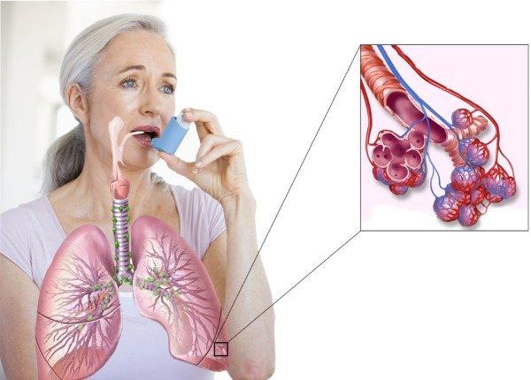 Фиброгастродуоденоскопия. Що це таке ФГДС, як робиться, підготовка пацієнта до процедури, розшифровка результатів