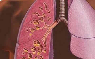 фіброз легенів