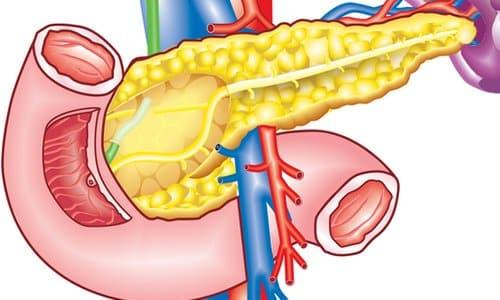 Фіброз підшлункової залоза Симптоми