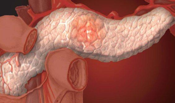 фіброз підшлункової залоза