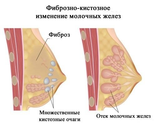 Фіброзна кіста молочной залоза