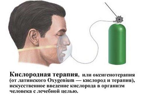 Фіброзні зміни в легенях. Що це, причини, фото дифузні, локальні, після пневмонії, післяопераційні. Як лікувати