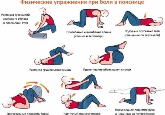 Фізичні вправи при грижі в попереку.
