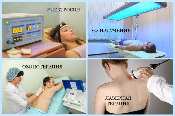 Фізіотерапія при екземі