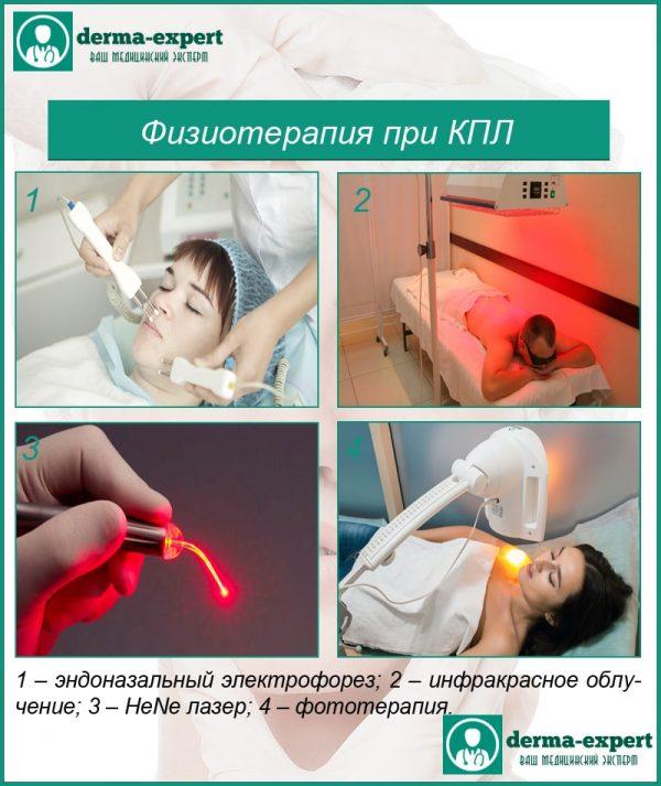 Фізіотерапія при червоному плоскому лішаї