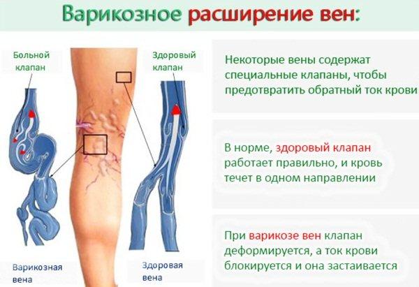 Flebodia (Флебодіа) при варікозі ніг при вагітності.  Інструкція, Відгуки, ціна