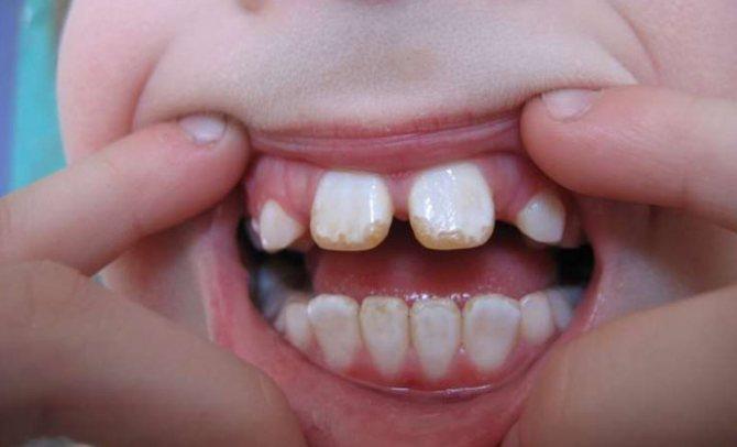 Флюороз на дитячих зубах