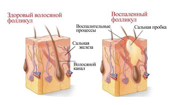 фолікуліт