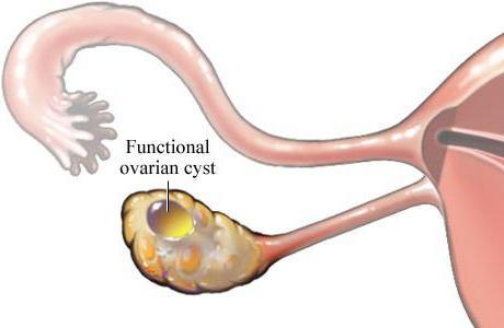 фолікулярна кіста яєчника розміри для операції