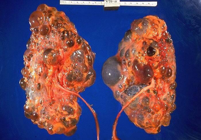 фото кісти нирки