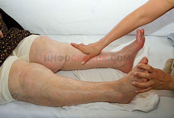 Фото ніг, набрякають від серцевої недостатності