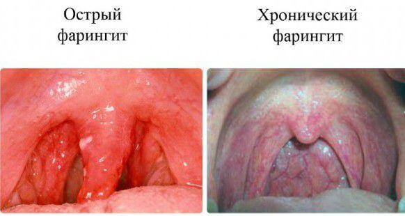 Фото гострого і хронічного фарингіту