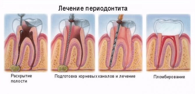Фото: Процес лікування