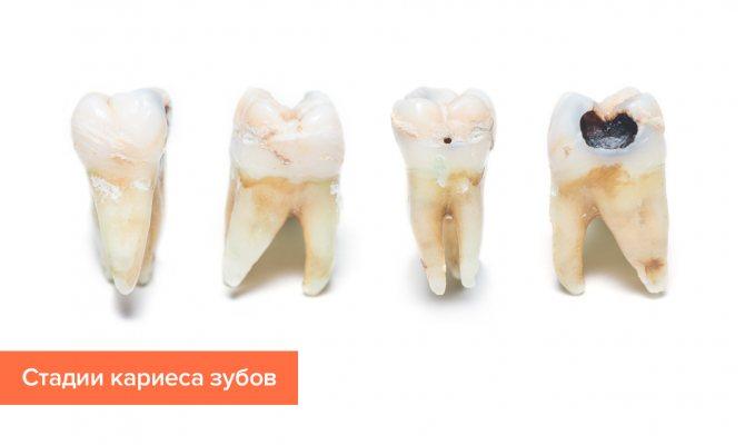 Фото стадій карієсу зубів