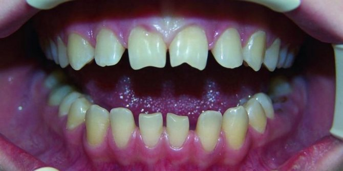 фото зуби Гетчінсона