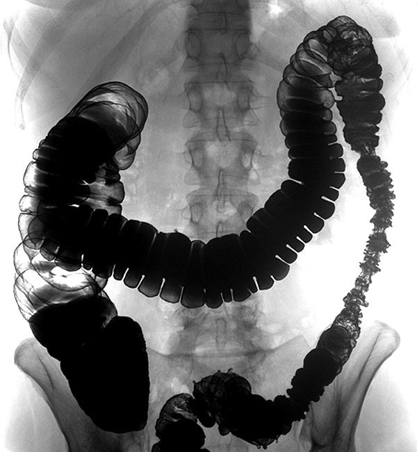 гаустри товстої кишки при ирригоскопии
