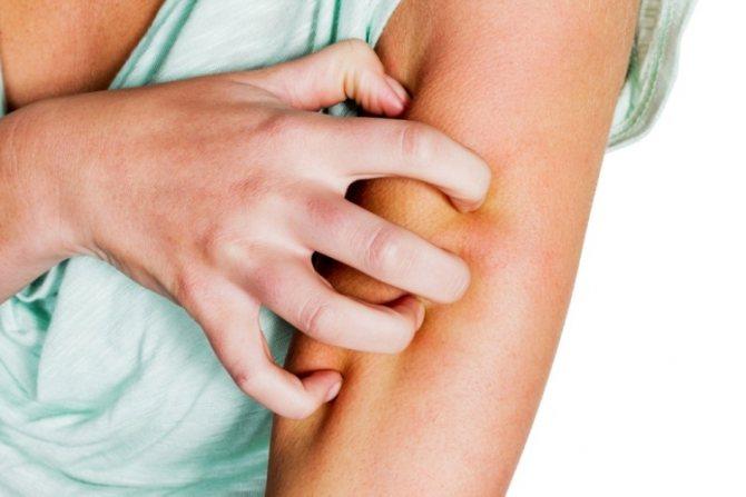 Гель ефективного усуває свербіж кожи
