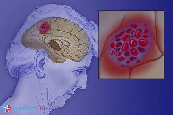 гемангіома головного мозком, пухлина Судін