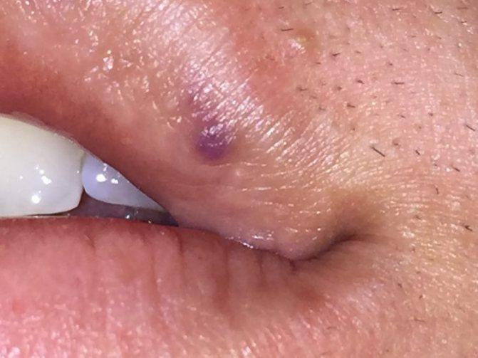 Гемангіома на губі