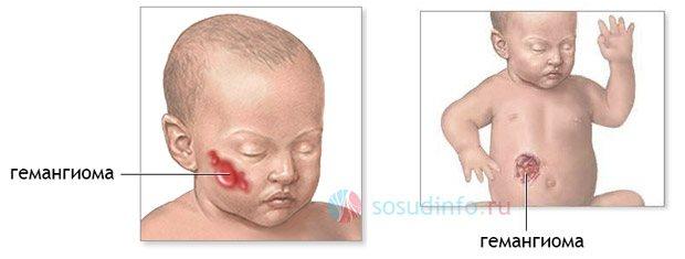 гемангіома на обліччі и жівоті у новонародженого