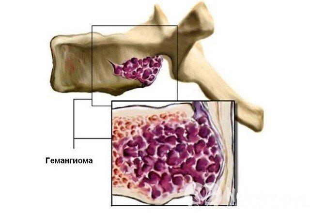 Гемангіома хребта недостатньо добре вивчена, щоб лікарі могли зрозуміти, що саме стає причиною пробудження у людини цієї недуги