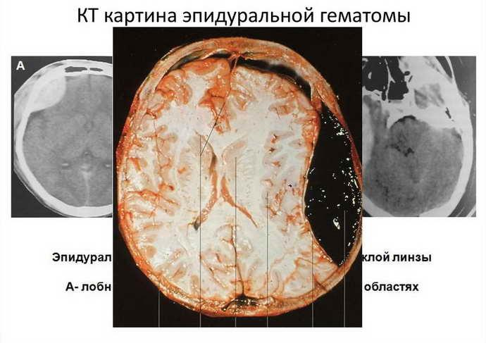 гематома головного мозку ознаки