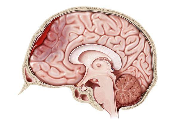 гематома в голові