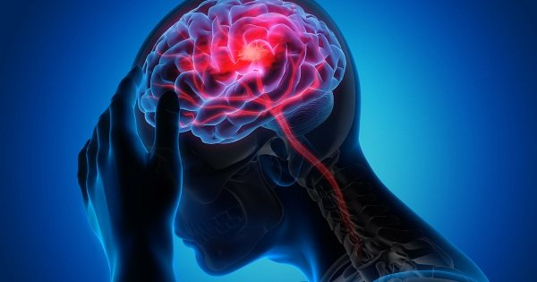 Геморагічній інсульт.  Що це таке, симптоми, діагностика, лікування КЛІНІЧНІ рекомендації, прогноз