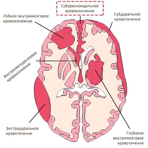 Геморагічний інсульт.  Що це таке, симптоми, діагностика, лікування клінічні рекомендації, прогноз