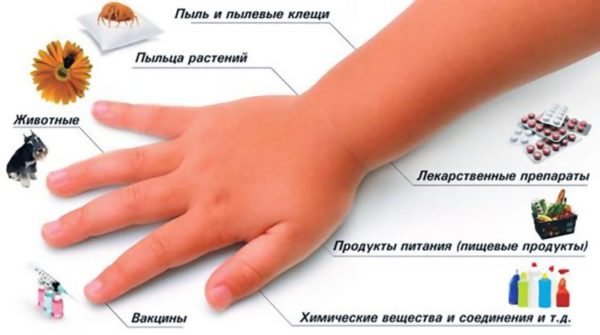 Геморагічній васкуліт код за МКХ 10