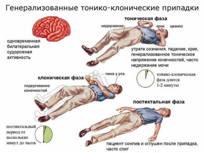 Геніралізірованние судоми при судорожному синдромі