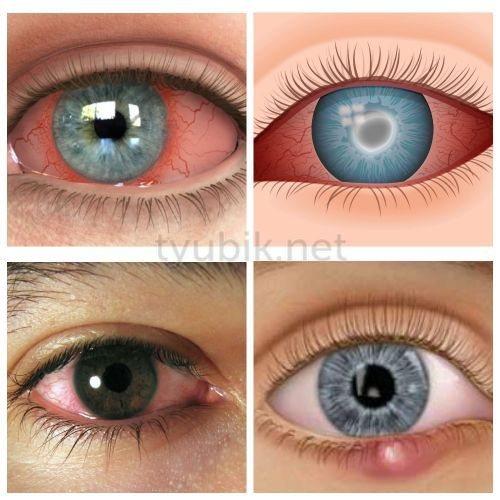 Гентаміцин поширений при лікуванні багатьох очних хвороб
