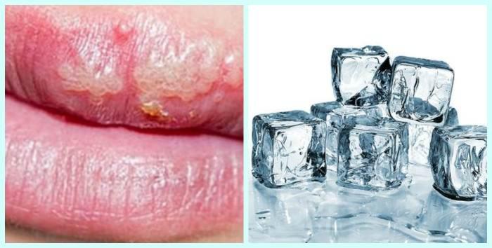 герпес на губах домашнє лікування