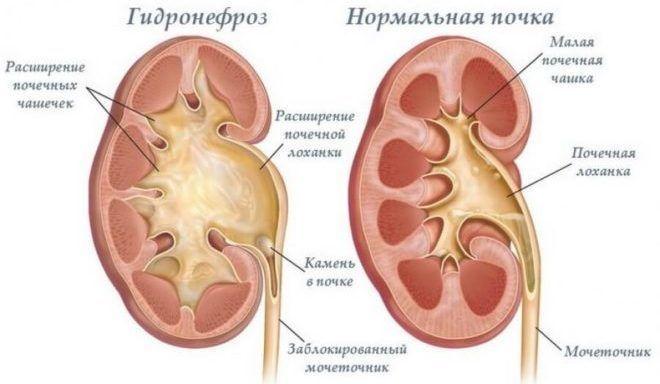 гідронефроз нирок