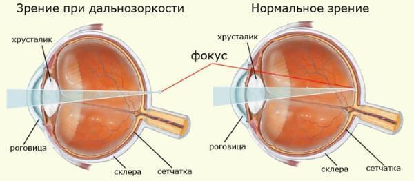 гіперметропія схематично