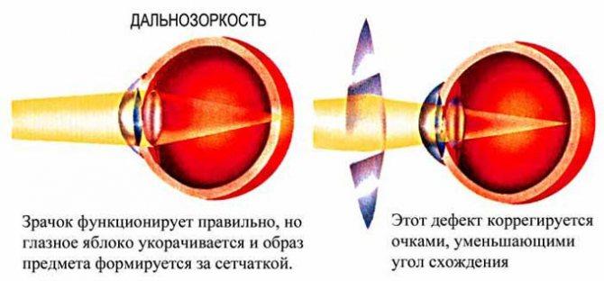гіперметропія Слабкий ступенів