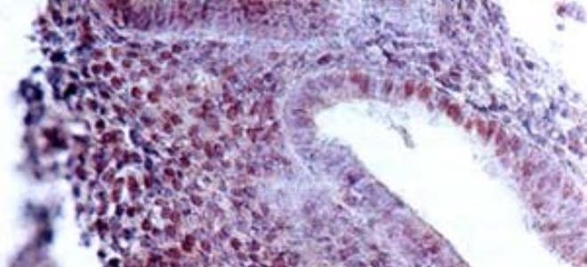 гіперплазія ендометрію матки