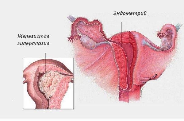 гіперплазія матки
