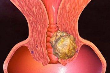 Гіперплазія яєчника в менопаузі