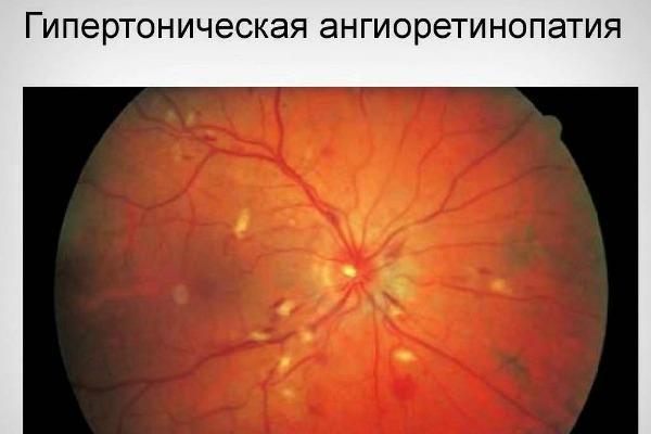 гіпертонічна ангиоретинопатия