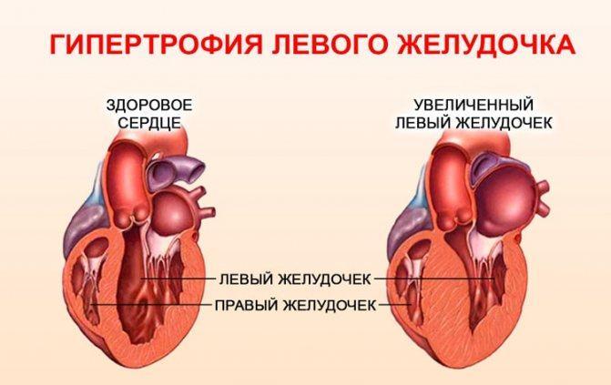 Гіпертрофія лівого шлуночка