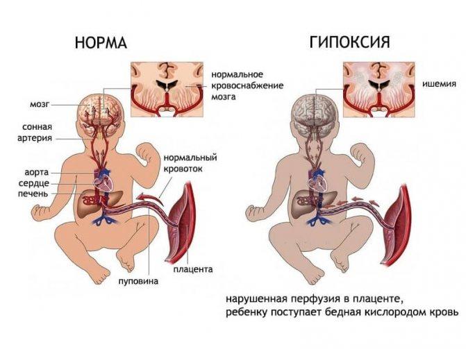 Гіпоксія плода при вагітності небезпека