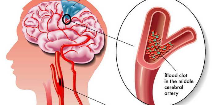 гіпоплазія головного мозку