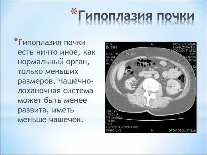 гіпоплазія нирки у дітей