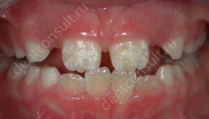 Гіпоплазія зубної емалі