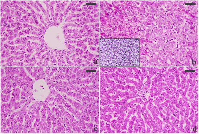 гістологічну будову печінки