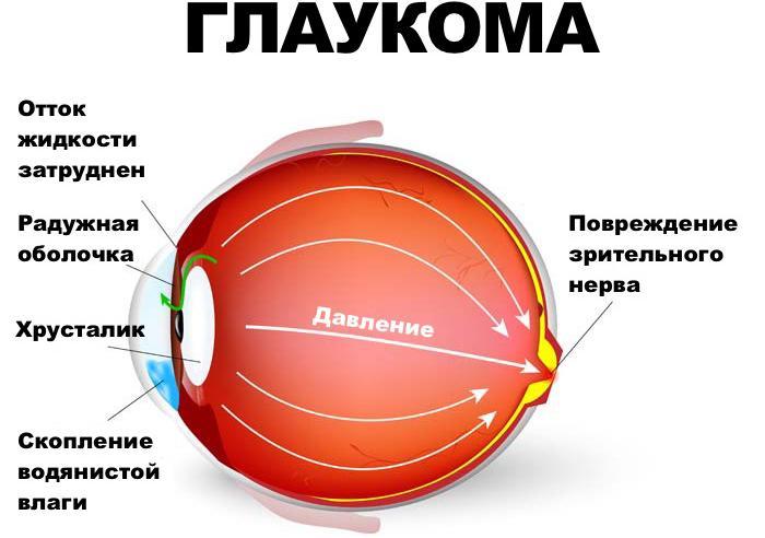 глаукома очі