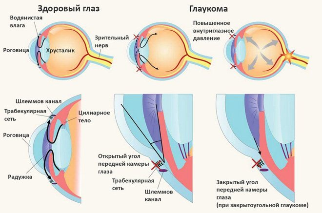 глаукома